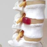 松戸の整体・カイロプラクティックの椎間板ヘルニアで来院された患者様の声、評判